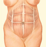abdominoplasty des moines iowa